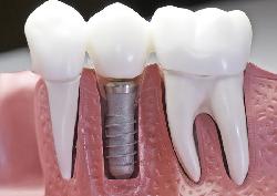 dentista Negra Verona Implantologia