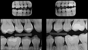 Diagnostica carie Dentista Negrar Verona