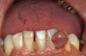 Dentista Negrar Verona Chirurgia orale Laser