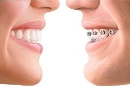Dentista negrar Verona Denti Laser Prevenzione
