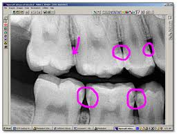 carie dentista Verona Negrar laser odontoiatria carie dentale