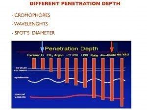 profondità della Terapia laser