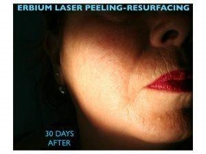 dentista verona negrar laser terapia