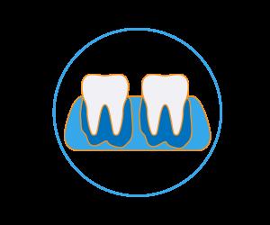 cura dentale Endodonzia