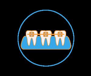 Studio Chiamenti Lista Ortodonzia invisibile