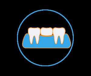 cura dentale Protesi dentale