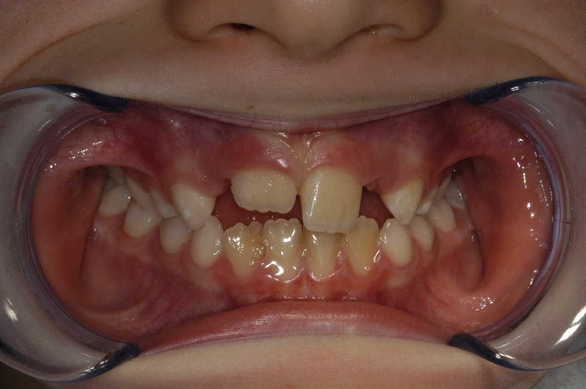 Dentista Negrar Verona Laser Malattia delle Gengive