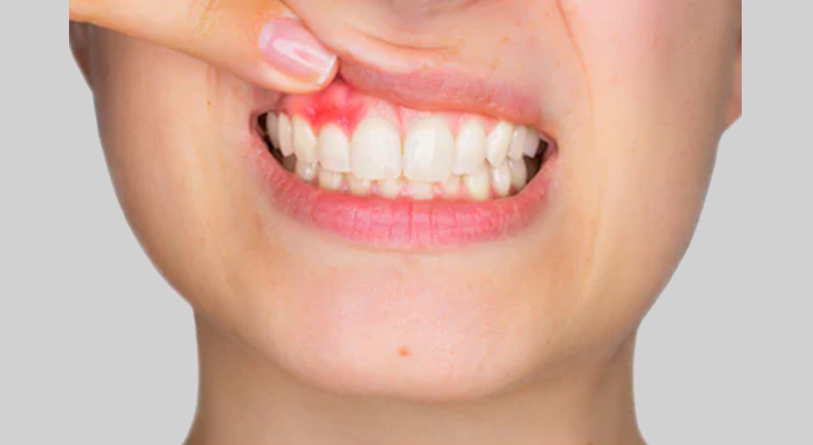 Cura della parodontite