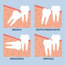Centro di odontoiatria laser a Verona Estrazione dei denti del giudizio