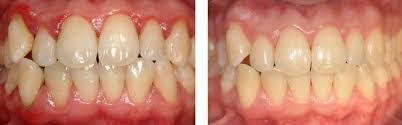 Parodontite cura definitiva Dentista Negrar verona