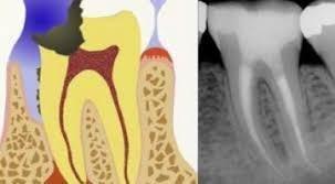 Centro di odontoiatria Estrazione dei denti del giudizio