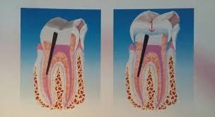 Centro di odontoiatria laser Devitalizzazione dente