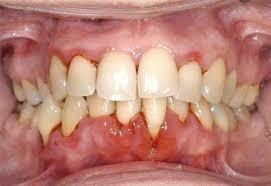 Centro di odontoiatria laser a Verona e terapia laser della parodontite.
