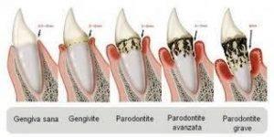 processo di Parodontite