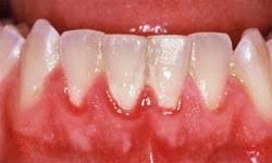 Studio Chiamenti Lista - Centro di odontoiatria laser a Verona e terapia laser della parodontite.