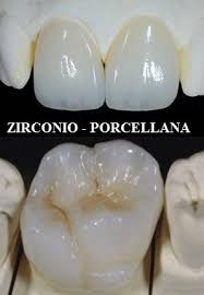 corona zirconio porcellana