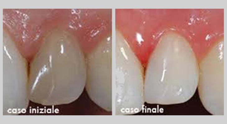 Sbiancamento dente singolo o capsula dentale