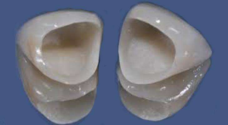 Quale corona per un dente anteriore