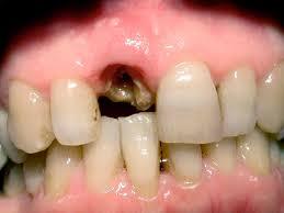 Radice dente da estrarre