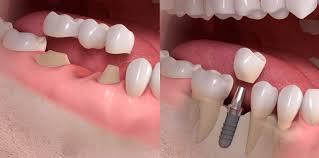 Radice dente da estratta e sostituita con ponte o impianto