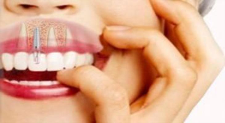 Perché l'impianto dentale è una ottima scelta?