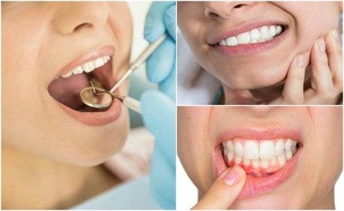 Studio dentistico Chiamenti Lista Terapia laser della Parodontite