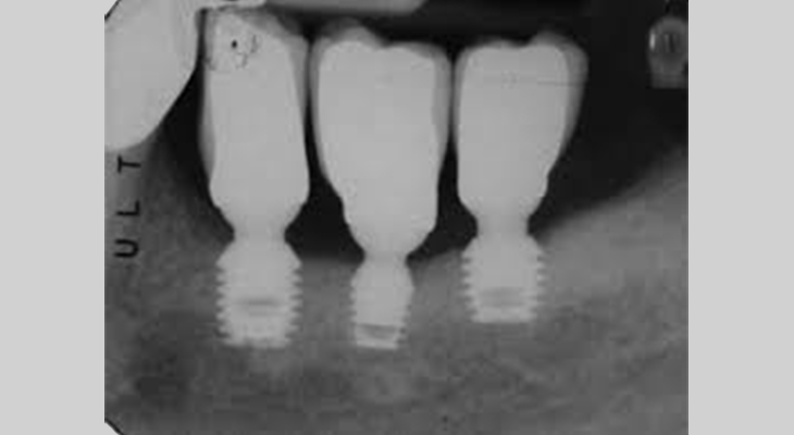 Impianto dentale senza osso