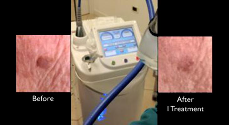 Asportazioni di neoformazioni con il laser