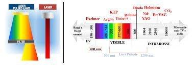 raggio laser