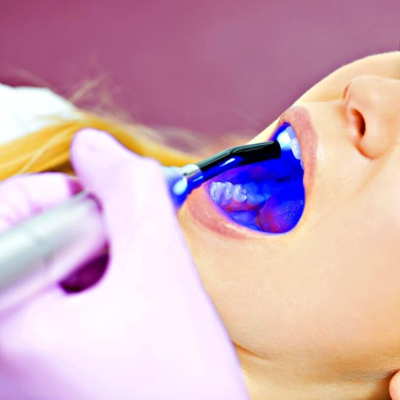 Clinica dentale laser Negrar Verona
