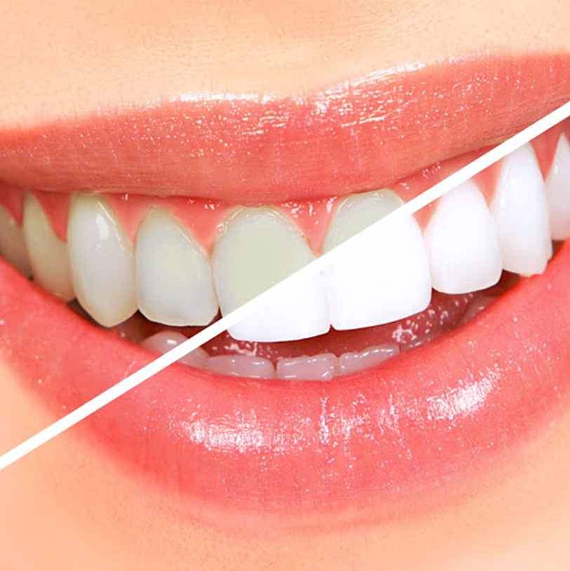 Cura l'estetica presso Clinica dentale laser Negrar Verona