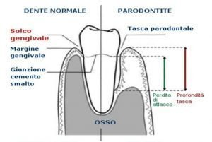 Danno da parodontite: la tasca