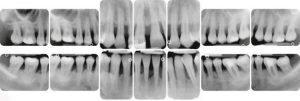 Parodontite lesioni e difetti ossei di natura parodontale