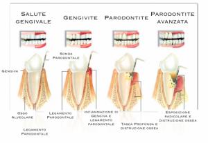 parodontite: solco gengivale e tasche parodontali