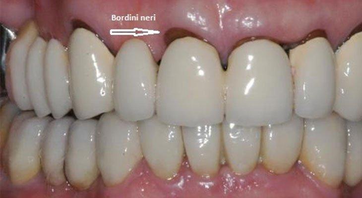 Bordo nero tra dente e gengiva, cause e rimedi