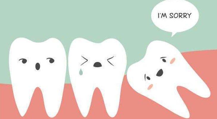 cura denti del giudizio
