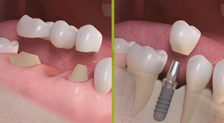 La radice di dente fratturato è da salvare o da sostituire con impianto