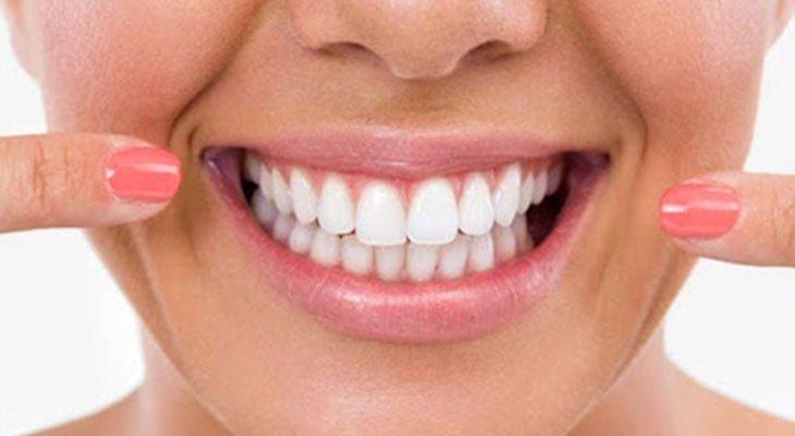 Sbiancamento denti in 10 domande – quanto costa?