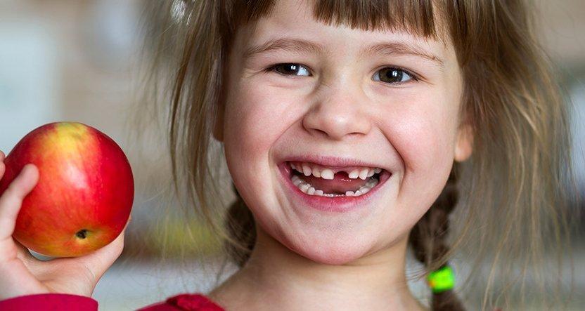 Ortodonzia precoce: Apparecchio bambini