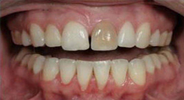 Dente nero cura e rimedi