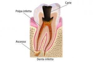 Dente nero cause e rimedi