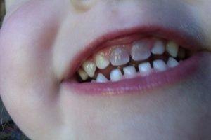 dente da latte nero
