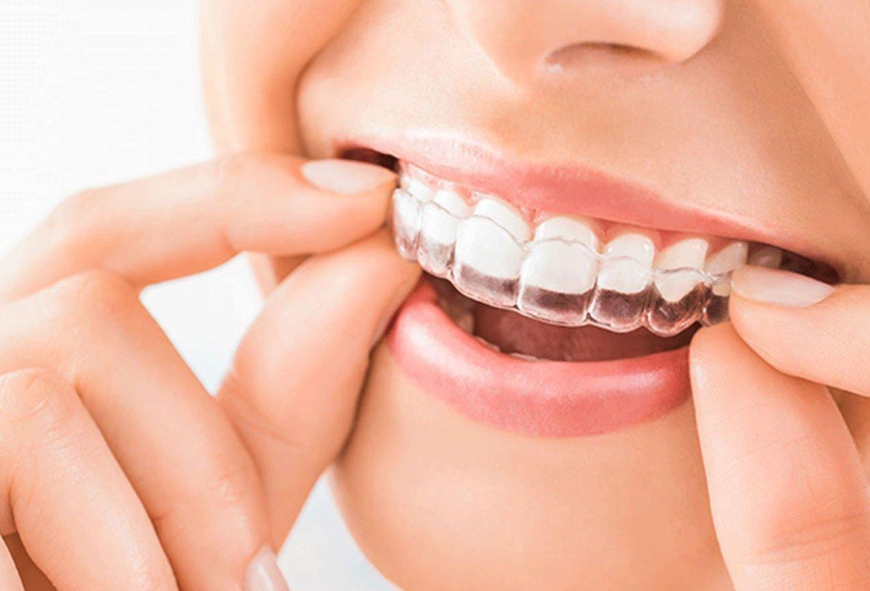 Studio dentistico Chiamenti Lista ortodonzia invisibile