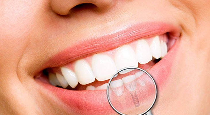 Impianti dentali perno