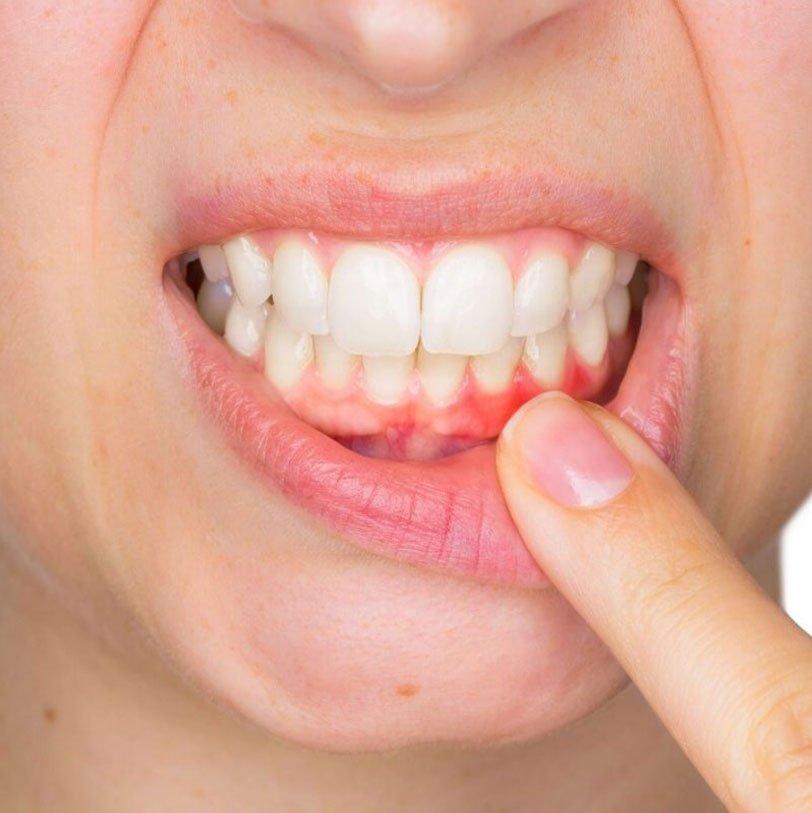Laser nella parodontite Studio dentistico Chiamenti Lista