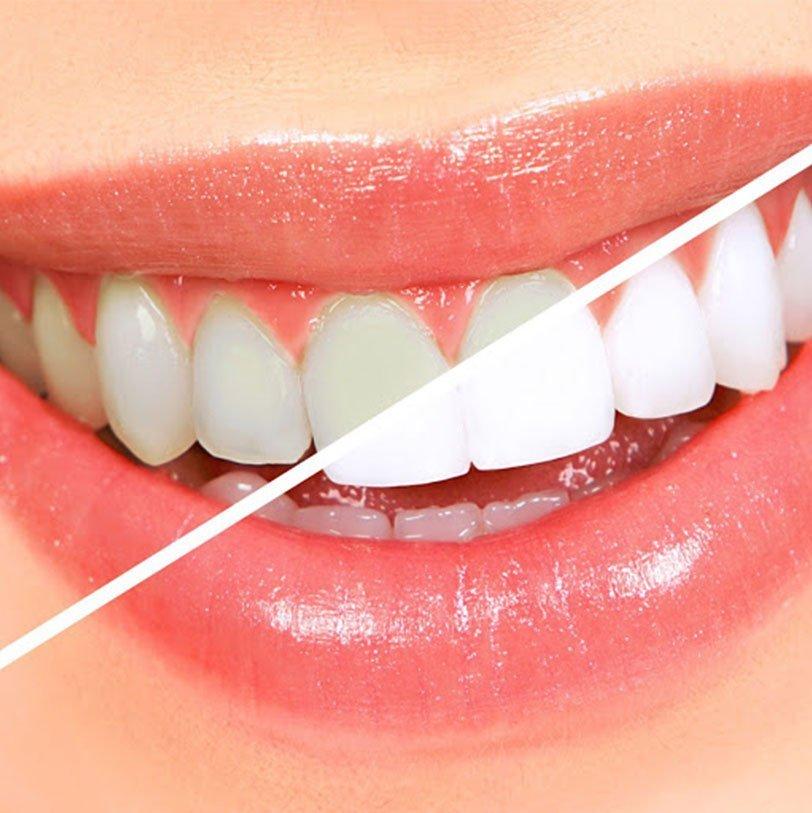 Laser in estetica Studio dentistico Chiamenti Lista