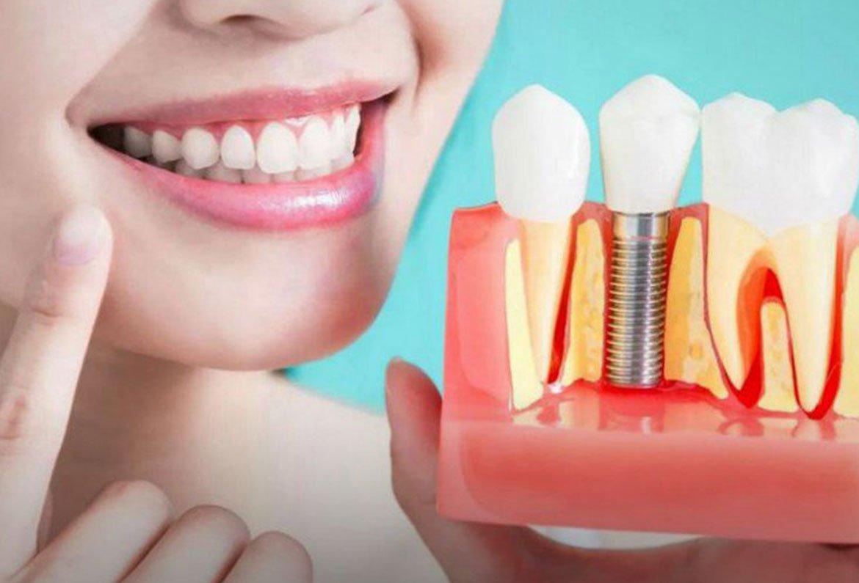 Studio dentistico Chiamenti Lista implantologia