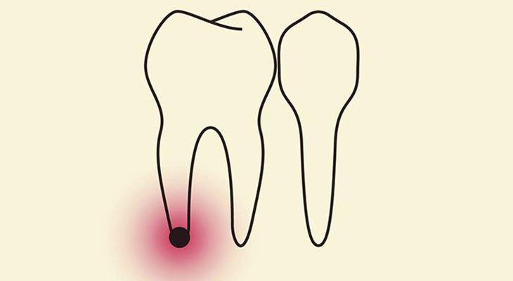 Granuloma dentale e la cura migliore per guarire