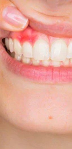 centro Terapia laser della parodontite a Va.